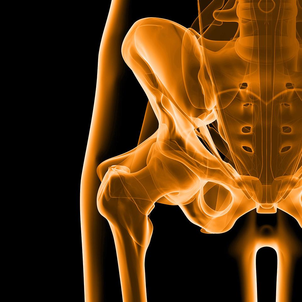 X-ray Hip